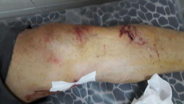 Pitbull atacó a una pareja de ancianos en Tafí Viejo